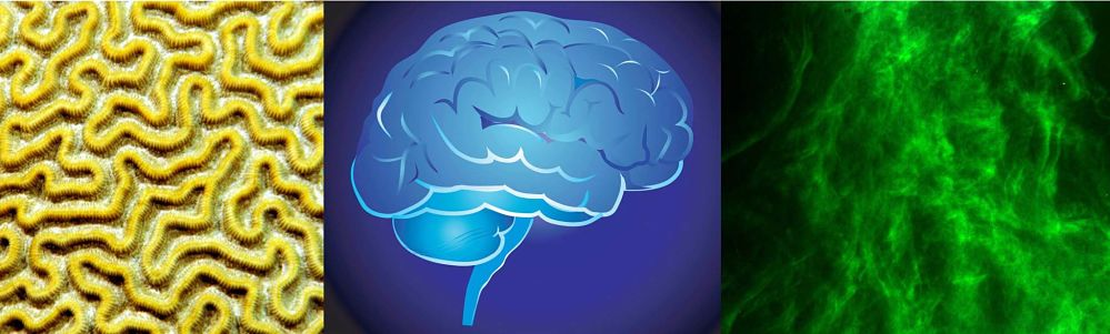 The Top 5 Things You Can Do to Improve Your Brain Health